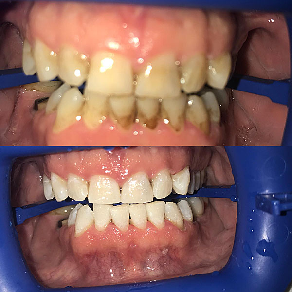 Zoom Teeth Whitening Produces Amazing Results Moore Family Dental